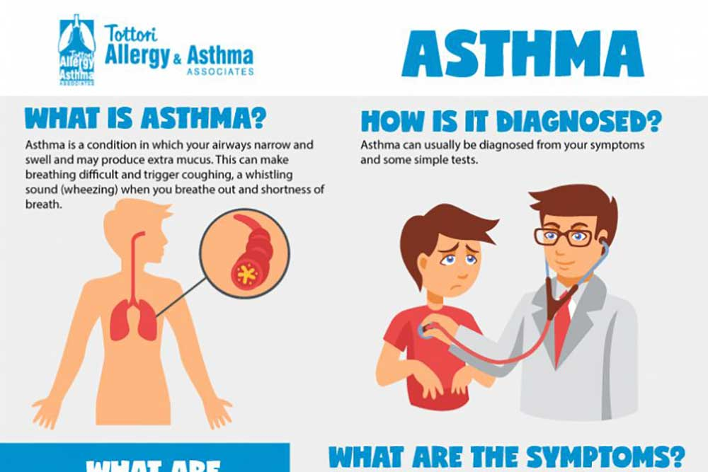 best allergists near me infographic about asthma