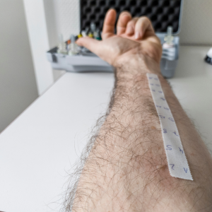 Allergist Las Vegas getting a man's arm ready for an allergy test