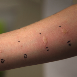 Allergist Las Vegas completing a skin test on a patient