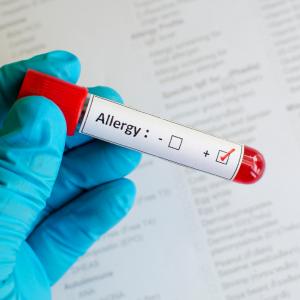 Allergist Las Vegas with allergy vial
