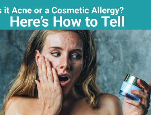 Is it Acne or a Cosmetic Allergy? Here's How to Tell